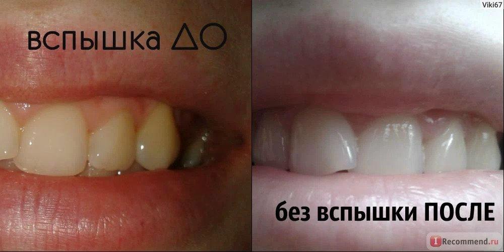 Отбеливание зубов дома, фото до и после