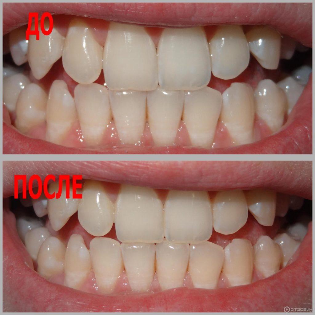 Отбеливание зубов в домашних условиях, фото до и после