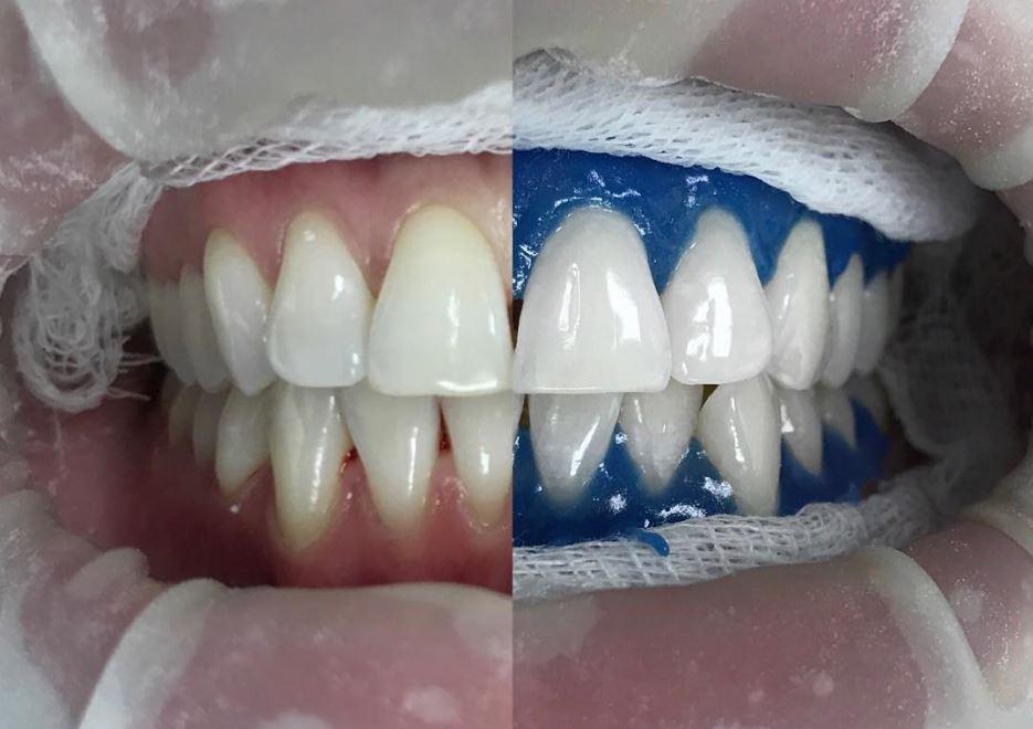 Профессиональное отбеливание зубов, фото до и после